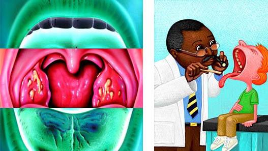 Ipertrofia adenotonsillare