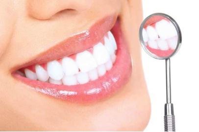 come avere denti bianchissimi