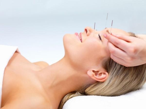I benefici dell'agopuntura