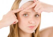 Cause e sintomi dell'acne