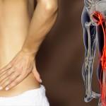 le cause e i rimedi per combattere la sciatica