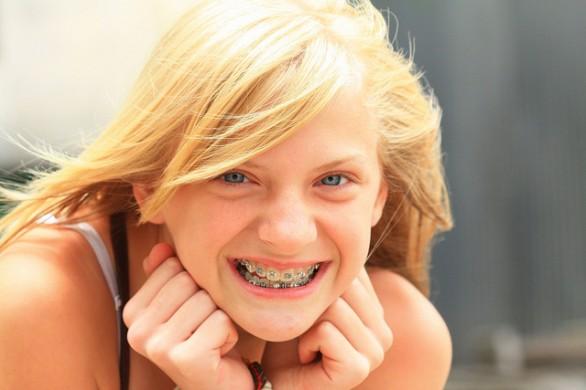 apparecchi dentali per bambini