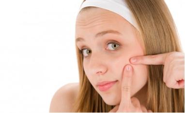 Rimedi naturali contro acne giovanile