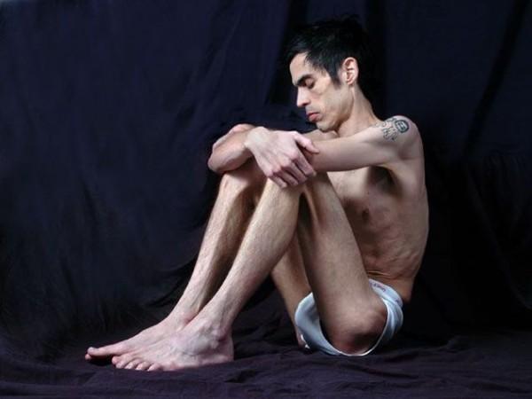 Ragazzo anoressico