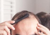 Dati sulla caduta dei capelli