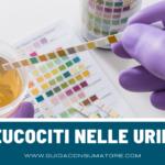 Leucociti nelle urine dei bambini: le cause principali